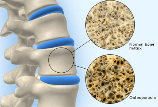 perbedaan osteoporosis dan osreoarthritis