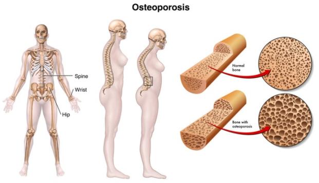 faktor-faktor yang mempercepat pengeroposan tulang