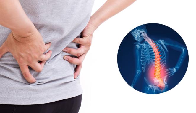 mengenal penyakit osteopenia sejak dini